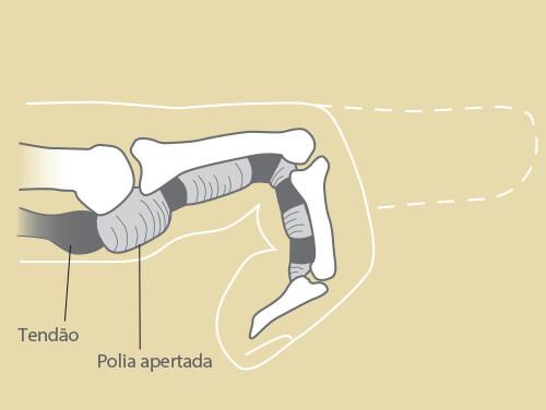 gustavo_figueiredo_ortopedista_cirurgia_de_mao_olhar_clinico_marketing_dedo_em_gatilho_figura1