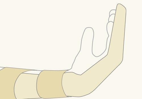 gustavo_figueiredo_ortopedista_cirurgia_de_mao_olhar_clinico_marketing_lesao_no_tendao_flexor_figura3