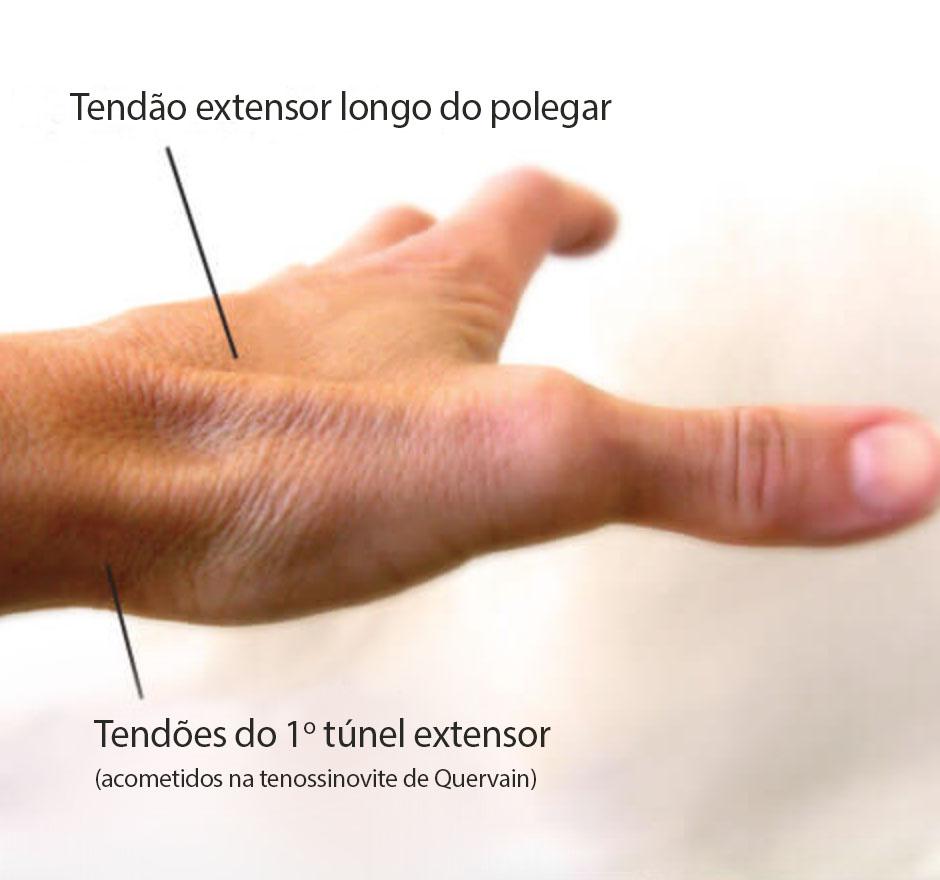 gustavo_figueiredo_quervain_cirurgia_da_mao