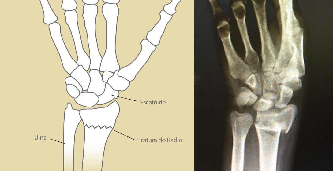 fratura_do_radio_gustavo_figueiredo_cirurgia_da_mao