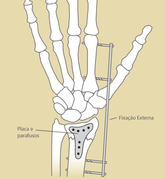 gustavo_figueiredo_ortopedista_cirurgia_de_mao_olhar_clinico_marketing_fratura_radio2