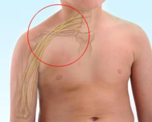 plexo_braquial_dr_gustavo_figueiredo_cirurgia_da_mao_figura_1