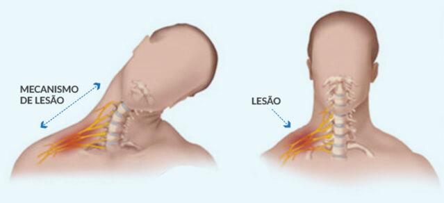 plexo_braquial_dr_gustavo_figueiredo_cirurgia_da_mao_figura_4
