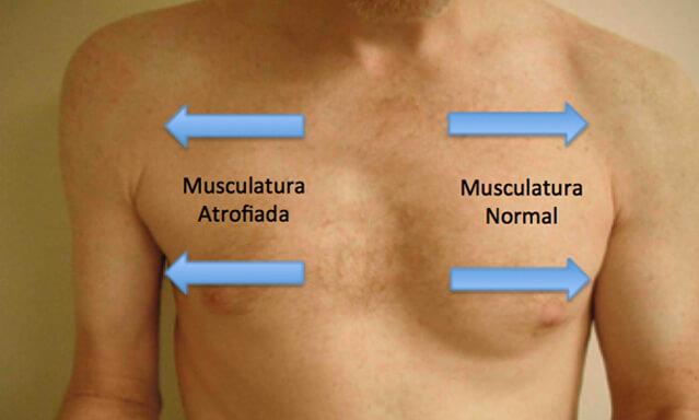 plexo_braquial_dr_gustavo_figueiredo_cirurgia_da_mao_figura_5