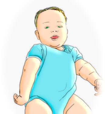 plexo_braquial_bebe_paralisia_obstetrica_ilustracao_gustavo_figueiredo
