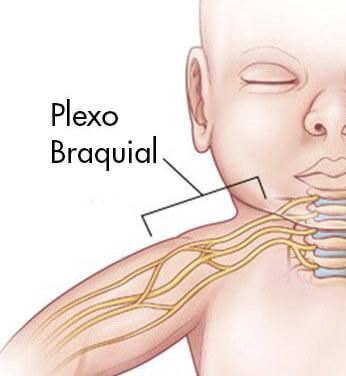 plexo_braquial_bebe_paralisia_obstetrica_local_gustavo_figueiredo